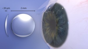 Raindrop Near Vision Inlay procedure