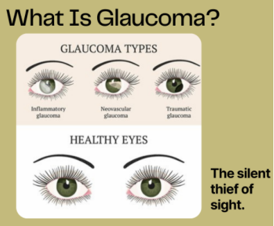 What is Glaucoma, the Silent Thief of Sight?